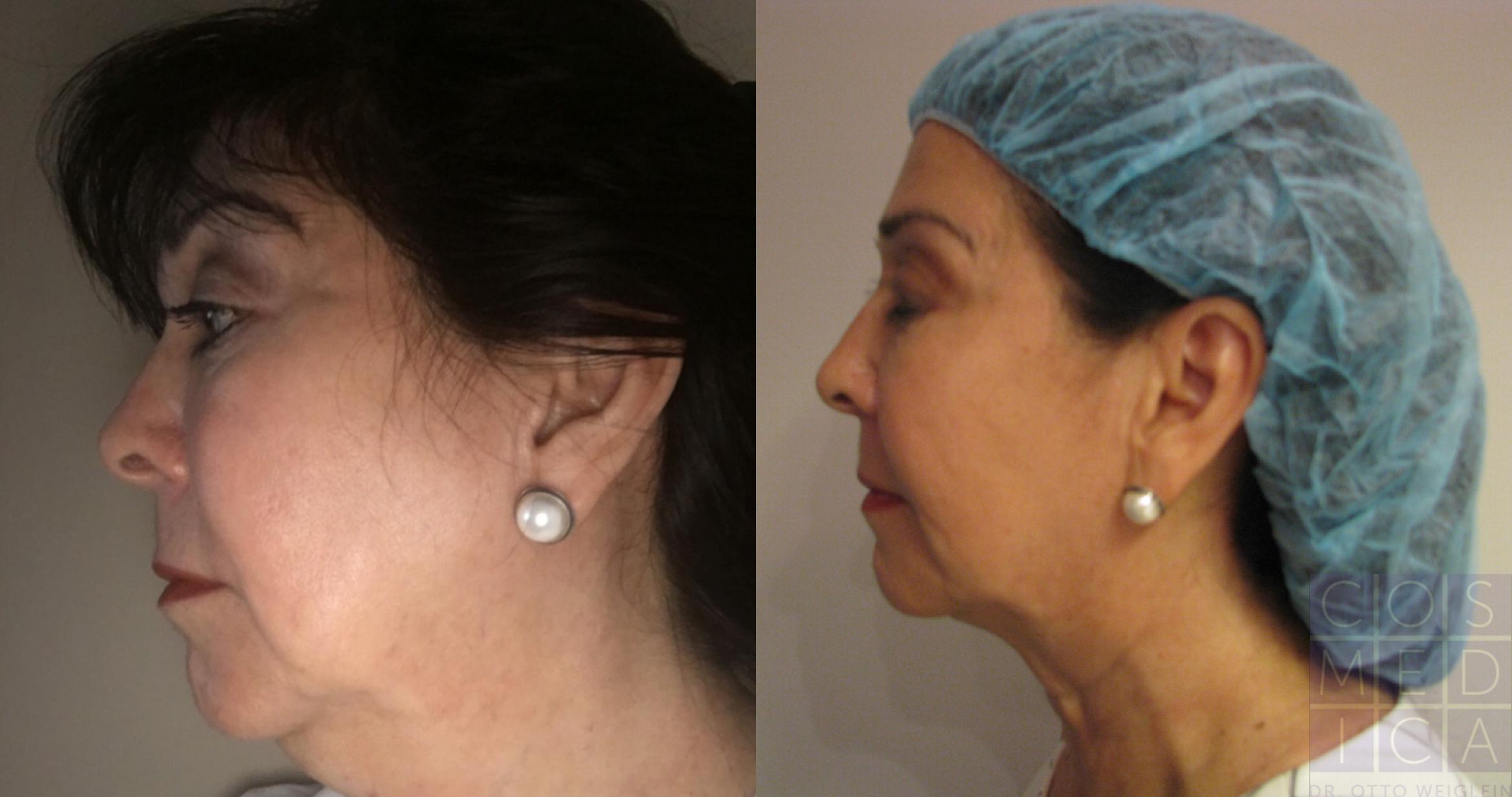 Belkyra® (Double Chin Treatment) Case 63 Before & After View #1 | Burlington & Oakville, Ontario | Cosmedica Professional Skin Care Centres