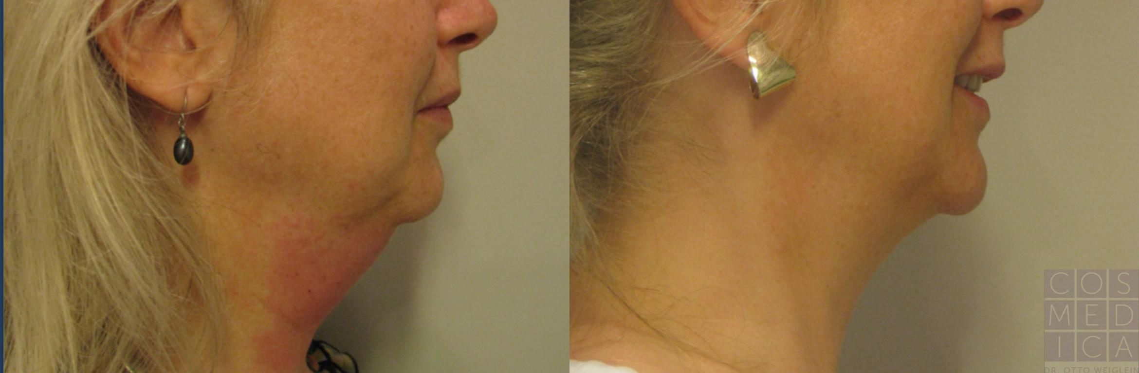 Belkyra® (Double Chin Treatment) Case 65 Before & After View #1 | Burlington & Oakville, Ontario | Cosmedica Professional Skin Care Centres