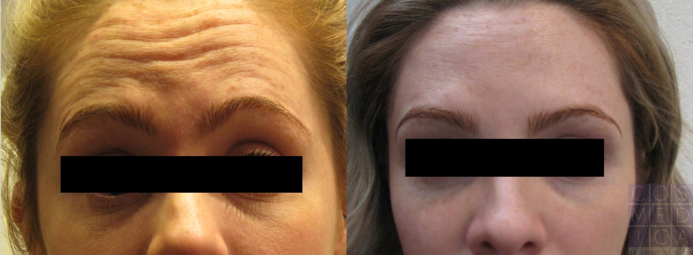 BOTOX® Cosmetic Case 83 Before & After View #1 | Burlington, ON | Cosmedica Professional Skin Care Centres