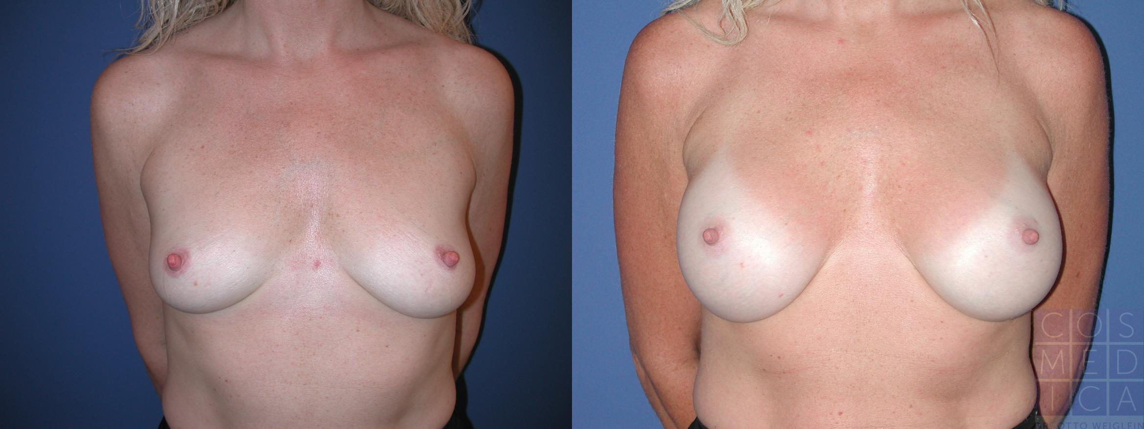 Breast Augmentation Case 26 Before & After View #1 | Burlington & Oakville, Ontario | Cosmedica Professional Skin Care Centres