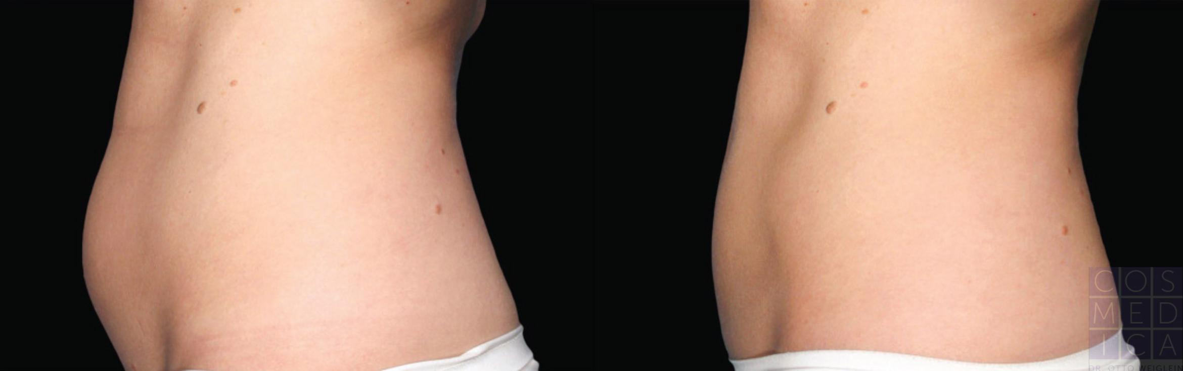 CoolSculpting® Case 29 Before & After View #1 | Burlington & Oakville, Ontario | Cosmedica Professional Skin Care Centres