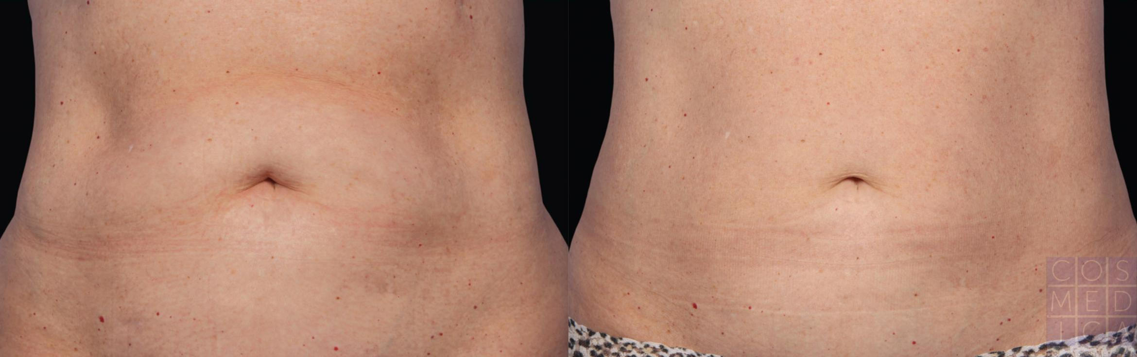 CoolSculpting® Case 33 Before & After View #1 | Burlington & Oakville, Ontario | Cosmedica Professional Skin Care Centres