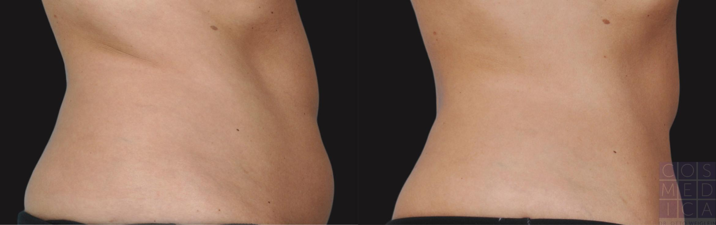 CoolSculpting® Case 36 Before & After View #1 | Burlington & Oakville, Ontario | Cosmedica Professional Skin Care Centres