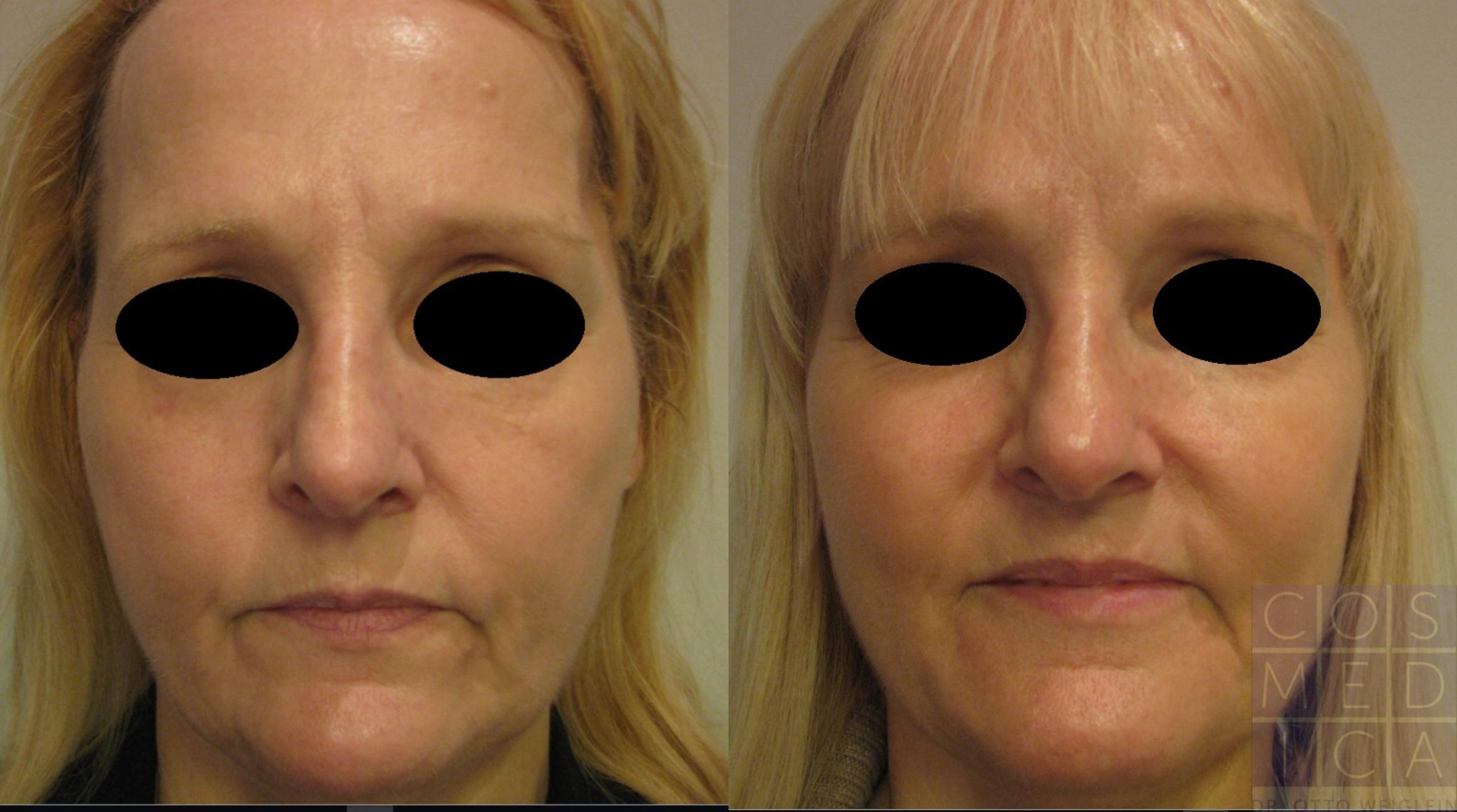 Dermal Fillers Case 40 Before & After View #1 | Burlington & Oakville, Ontario | Cosmedica Professional Skin Care Centres