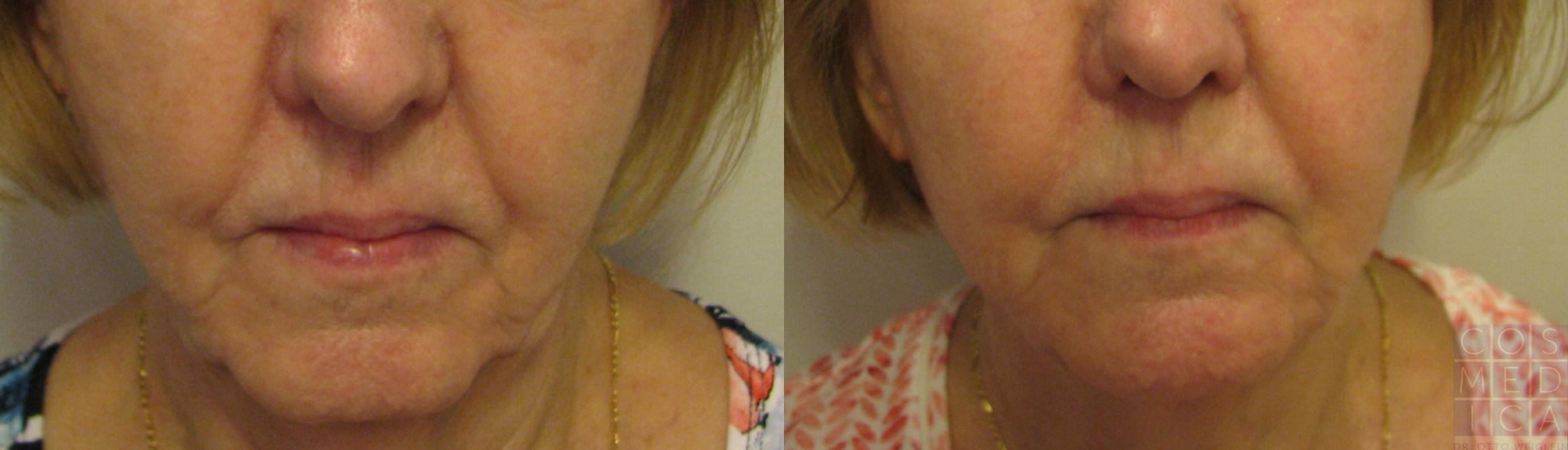 Dermal Fillers Case 71 Before & After View #1 | Burlington & Oakville, Ontario | Cosmedica Professional Skin Care Centres