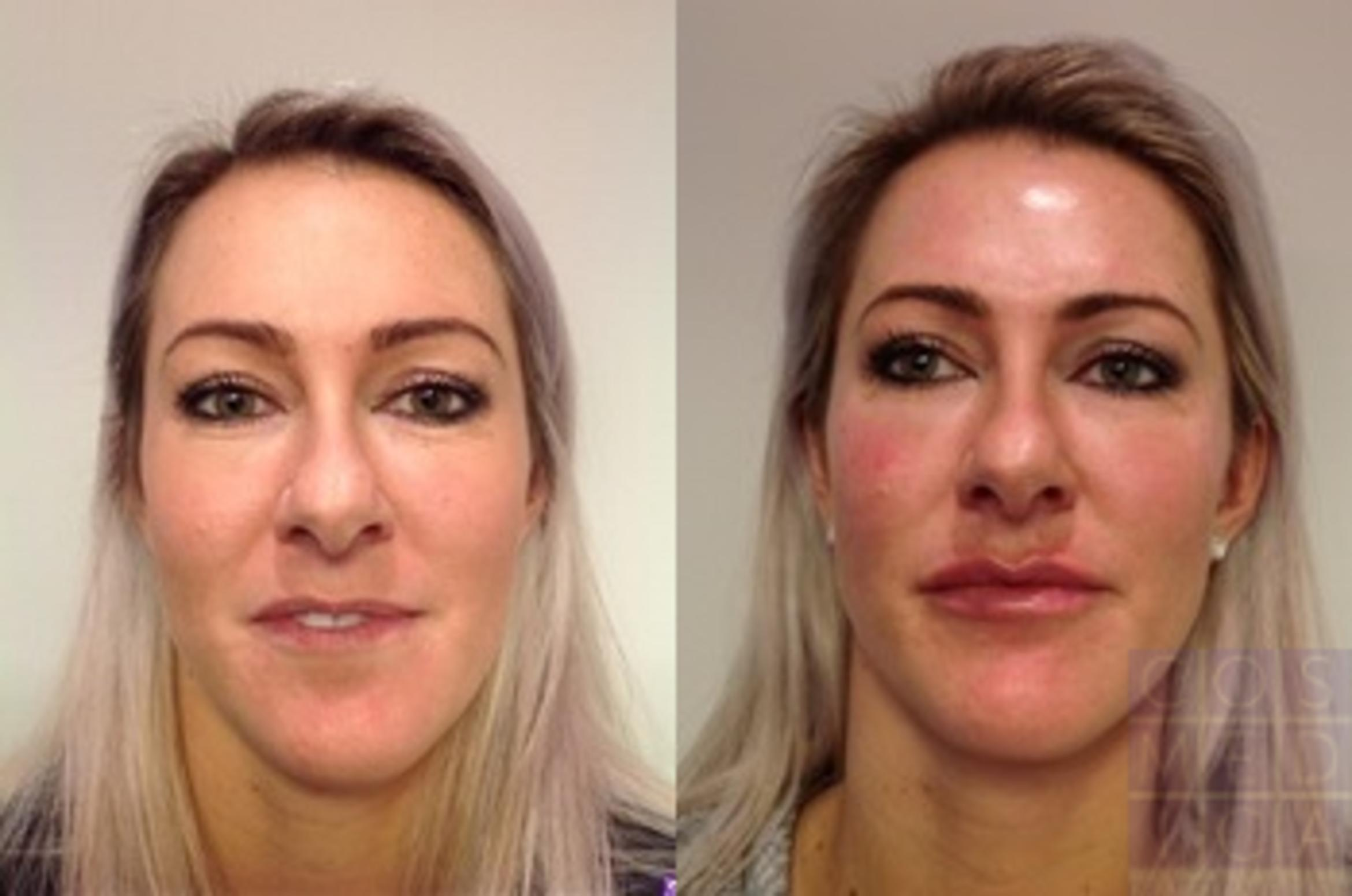 Dermal Fillers Case 74 Before & After View #1 | Burlington & Oakville, Ontario | Cosmedica Professional Skin Care Centres