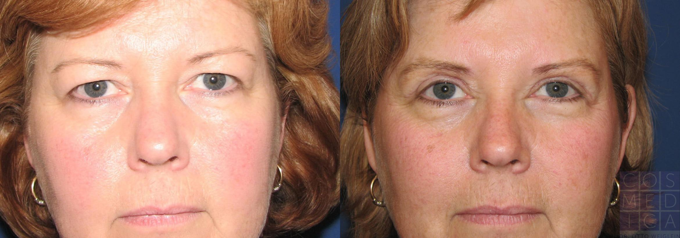 Eyelid Surgery Case 15 Before & After View #1 | Burlington & Oakville, Ontario | Cosmedica Professional Skin Care Centres